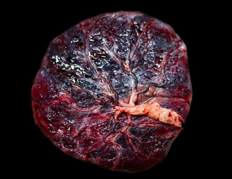 Top view of a Placenta and cord.