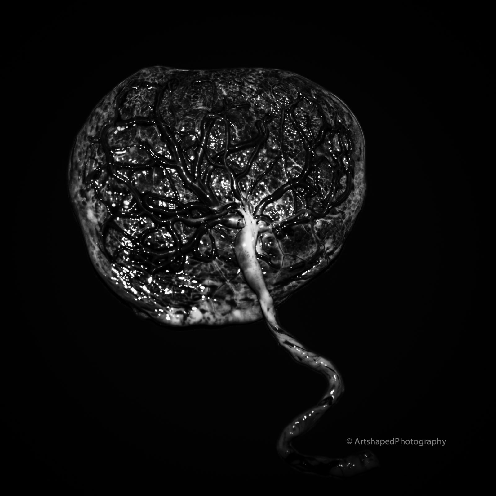 Black and white image of a placenta and its cord photographed by ArtShaped Photography and Birth Services